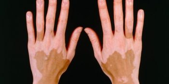 Phototherapy: A Ray of hope for Vitiligo patients