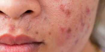 Acne Myths and Facts
